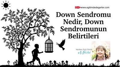 Down Sendromu Nedir, Down Sendromunun Belirtileri